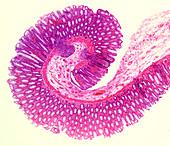 Normal human colon, light micrograph