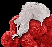 Macrophage and cancer cells, SEM