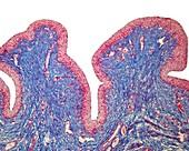 Urinary bladder mucosa, light micrograph