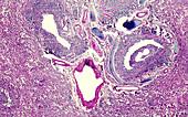 Viral pneumonia, light micrograph