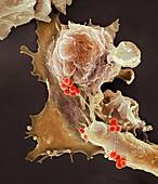 Neutrophil engulfing Staphylococcus aureus bacteria, SEM