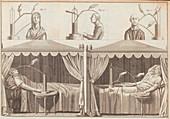 Galvani's human experiments, illustration