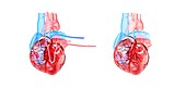 Human heart and its circulatory system, illustration