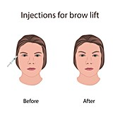 Injections for brow lift, illustration