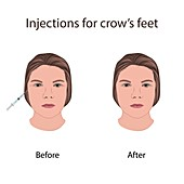 Injections for crow's feet, illustration