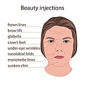 Scheme for beauty injections, illustration