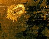 Sachs Patera, Venus, radar image