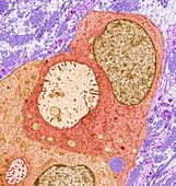 Breast cancer, TEM