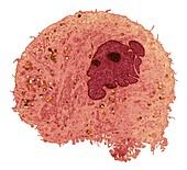 Leukaemia cell, TEM