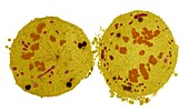 Cancer cell division, TEM