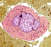 Lung cancer cells, TEM