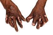 Hands affected by leprosy