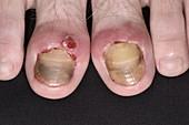 Infected toenails