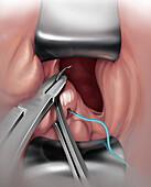 Surgery for Iatrogenic Injury, Illustration