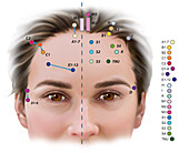 Acupuncture Points, Illustration