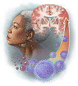 CAR T-cell Therapy , Illustration