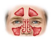 Normal Sinuses, Illustration