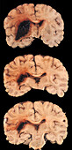 Human Brain, Hemorrhagic Infarct