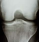 X-ray of Knee, Dorsal View
