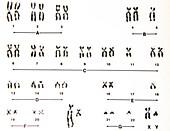 Human Male Karyotype, Acute Megakaryoblastic Leukemia