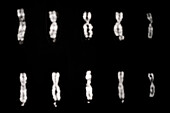 Fragile-X Chromosomes and Normal X Chromosomes
