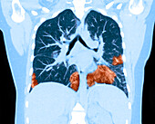 Lungs with Vaping Damage, Baseline CT