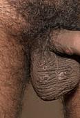 Secondary syphilis