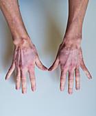 Vitiligo, skin pigment loss