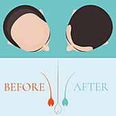 Hair loss treatment for men, conceptual illustration
