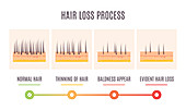 Hair loss stages, illustration