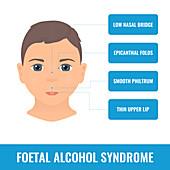 Foetal alcohol syndrome, illustration