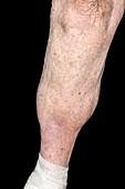 Lipodermatosclerosis