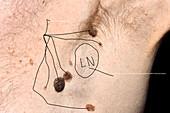 Swollen lymph node in metastatic melanoma