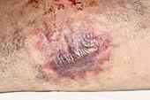 Bruised leg