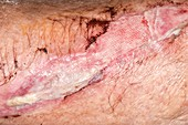 Infected laceration