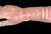 Bruising after coronary angiogram