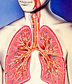 Lower respiratory tract infection, illustration