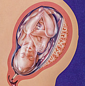 Full term foetus, illustration