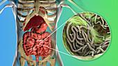 Round worms in human intestine, illustration