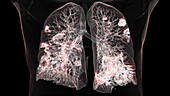 Lungs affected by Covid-19 pneumonia, CT scan