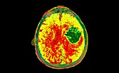 Intraparenchymal haemorrhage, CT scan