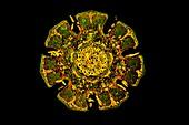 Casuarina tree, fluorescent light micrograph
