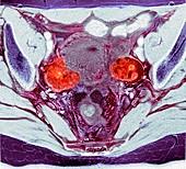 Ovarian cancer, MRI scan