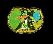 Pancreatic carcinoma, CT scan