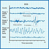 EEG sleep stages, illustration