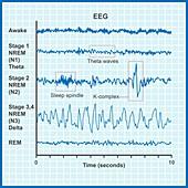 EEG sleep stages, illustration