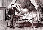 19th Century cirrhosis treatment, illustration