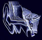 19th Century hearing aid, illustration
