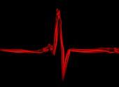 Electrocardiagram, illustration