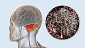 Human cerebellum and Purkinje neurons, illustration
